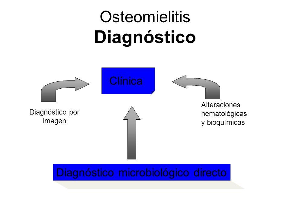 Osteomielitis Diagnóstico