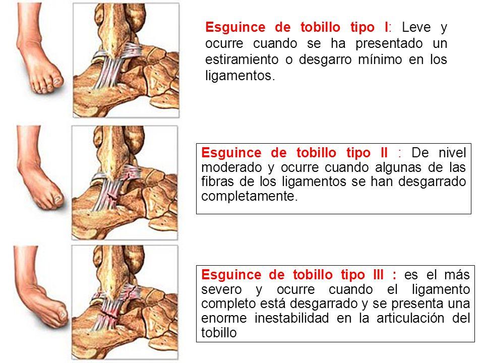 Esguince de tobillo tipo I: Leve y ocurre cuando se ha presentado un estiramiento o desgarro mínimo en los ligamentos.