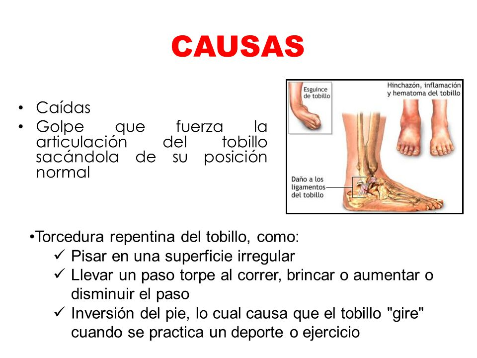 CAUSAS Caídas. Golpe que fuerza la articulación del tobillo sacándola de su posición normal. Torcedura repentina del tobillo, como: