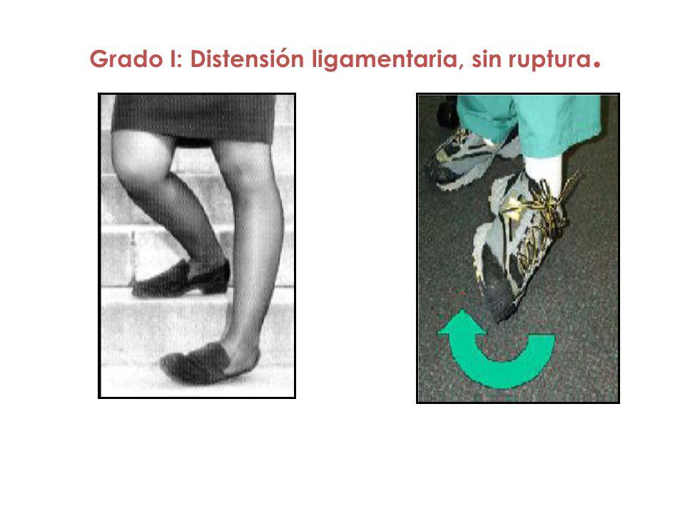 Grado I: Distensión ligamentaria, sin ruptura.