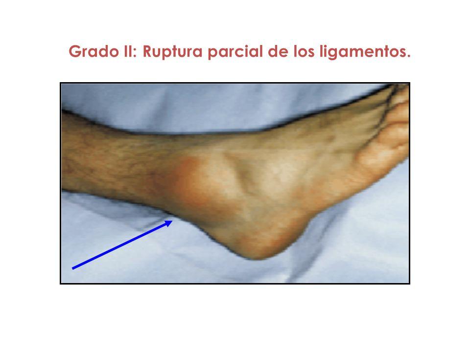 Grado II: Ruptura parcial de los ligamentos.