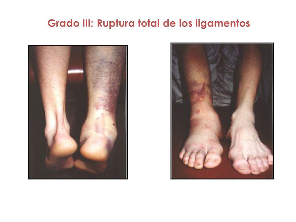 Grado III: Ruptura total de los ligamentos