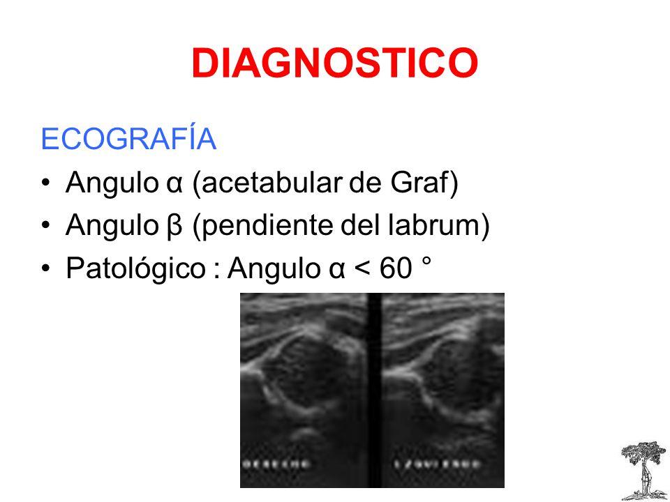 DIAGNOSTICO ECOGRAFÍA Angulo α (acetabular de Graf)