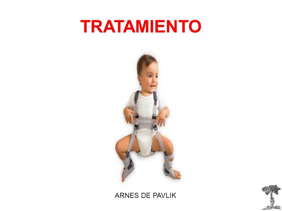 TRATAMIENTO ARNES DE PAVLIK