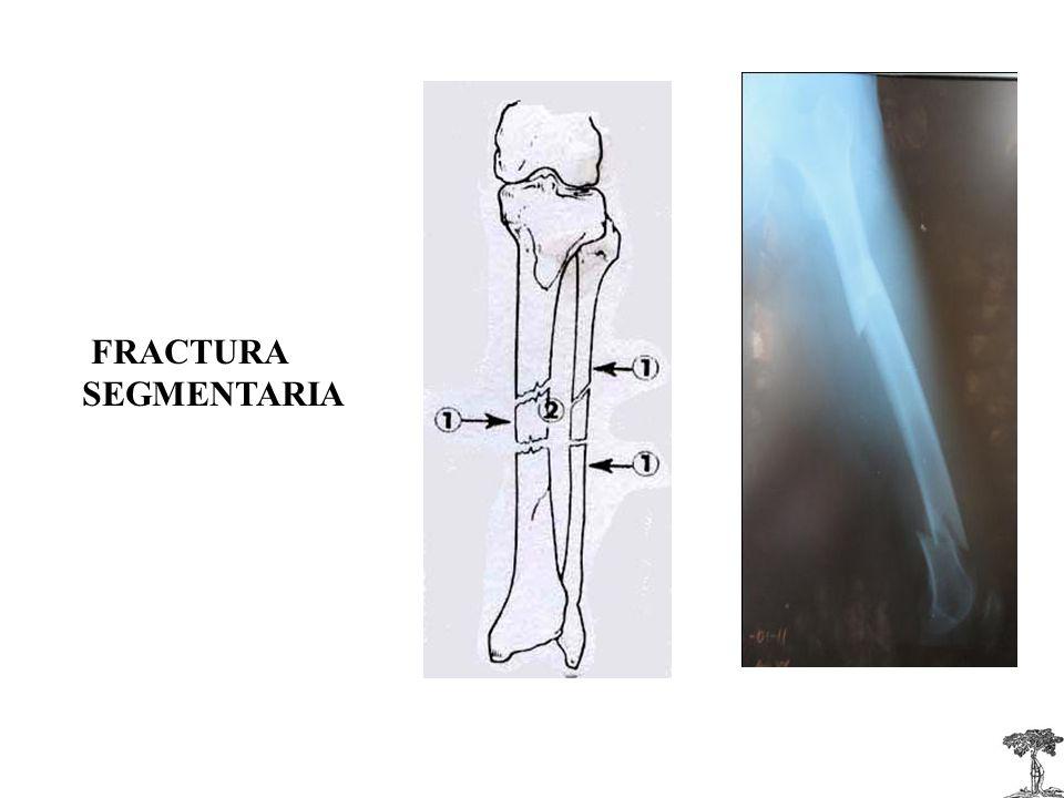 FRACTURA SEGMENTARIA