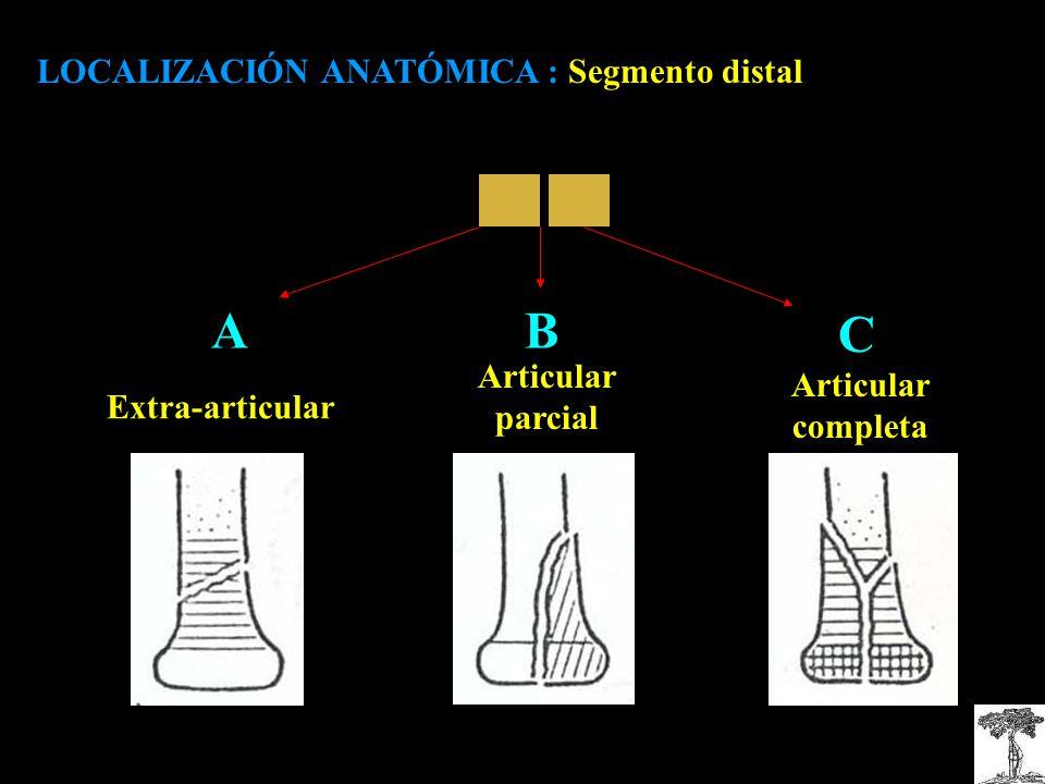 A B C LOCALIZACIÓN ANATÓMICA : Segmento distal Articular Articular