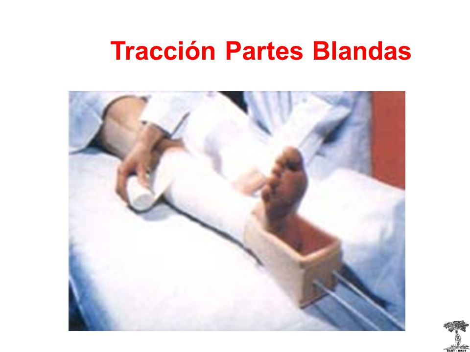 Tracción Partes Blandas