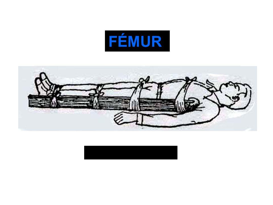 FÉMUR FÉRULA DE HARE FÉRULA DE HARE