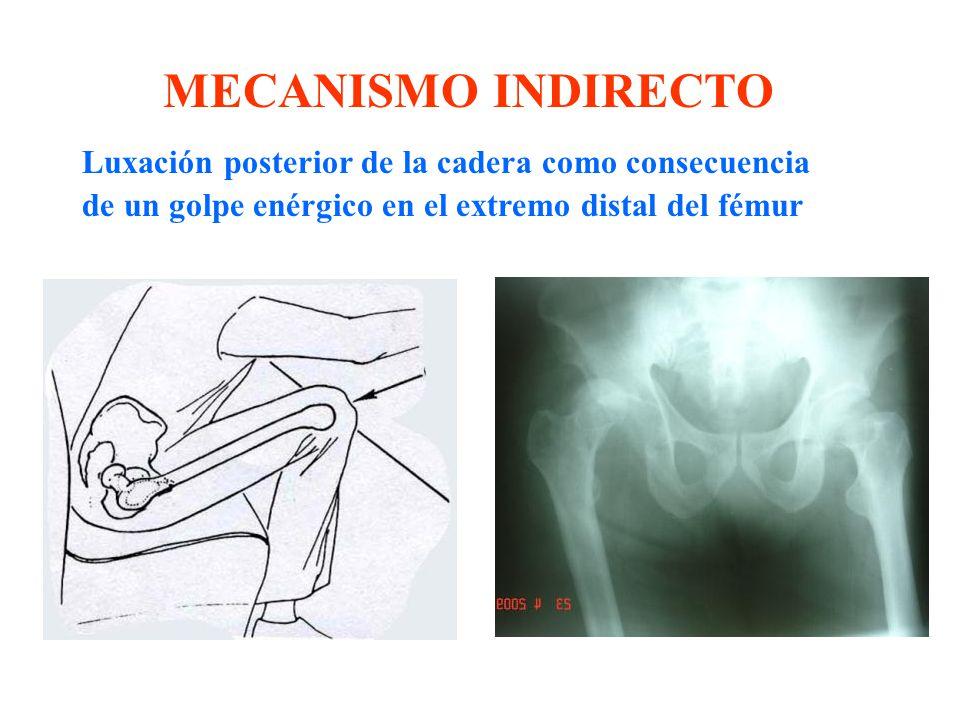 MECANISMO INDIRECTO Luxación posterior de la cadera como consecuencia