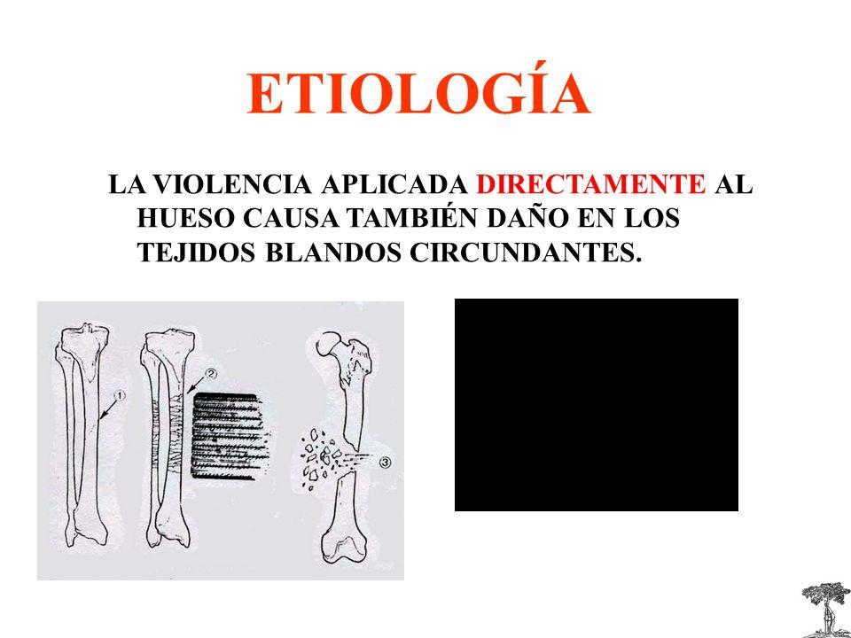 ETIOLOGÍA LA VIOLENCIA APLICADA DIRECTAMENTE AL HUESO CAUSA TAMBIÉN DAÑO EN LOS TEJIDOS BLANDOS CIRCUNDANTES.