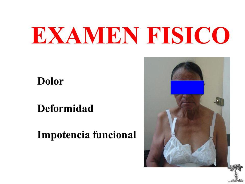 EXAMEN FISICO Dolor Deformidad Impotencia funcional