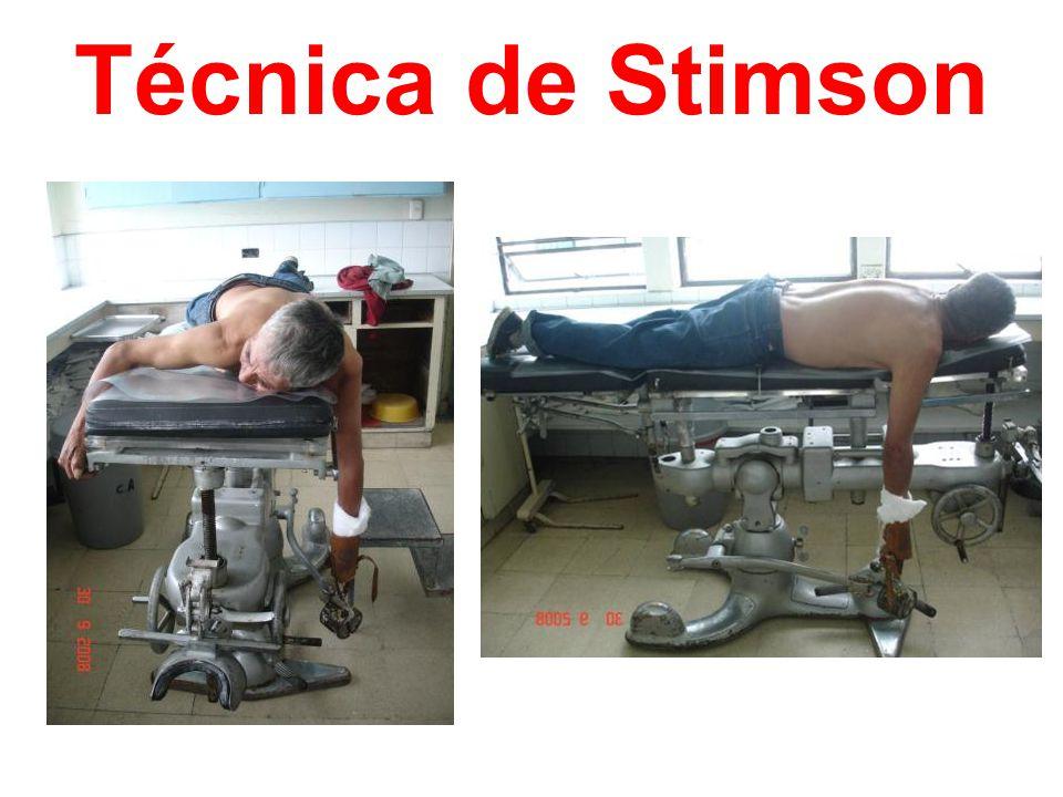 Técnica de Stimson