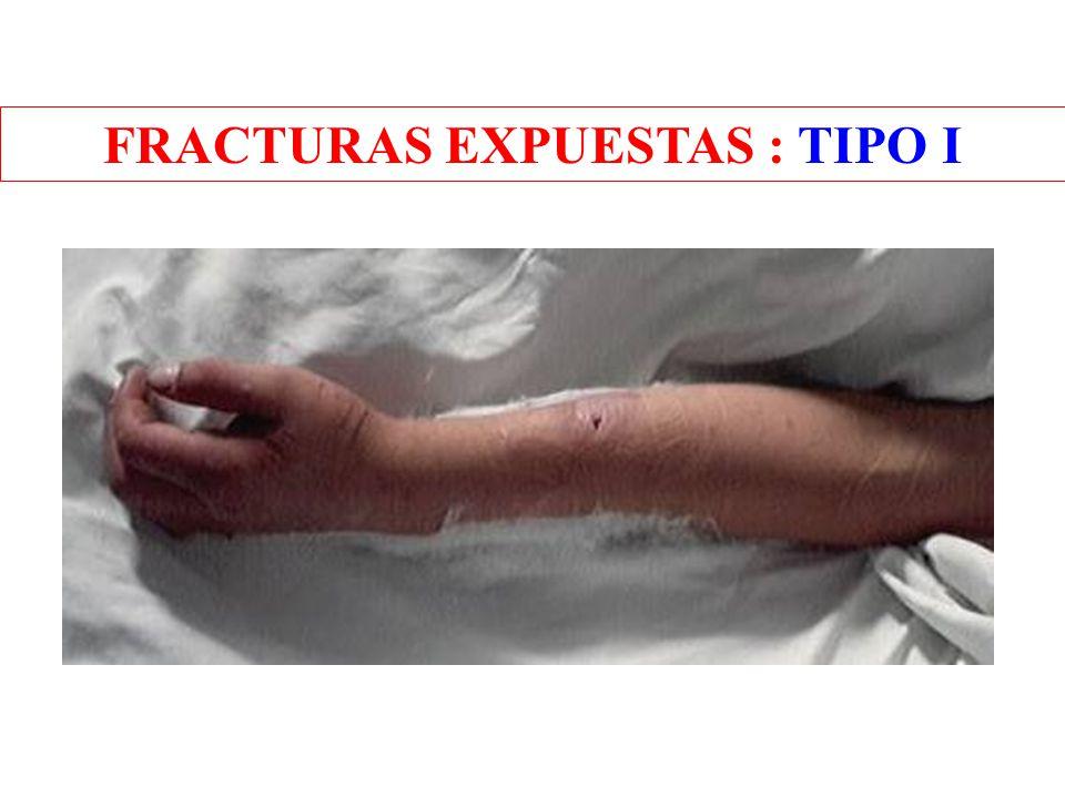 FRACTURAS EXPUESTAS : TIPO I