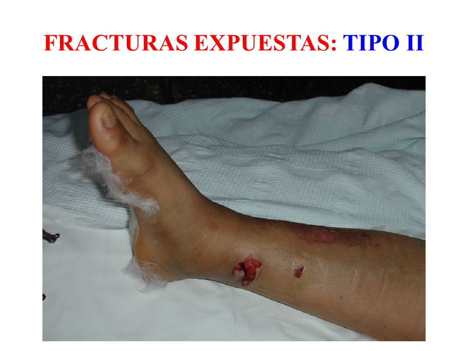 FRACTURAS EXPUESTAS: TIPO II