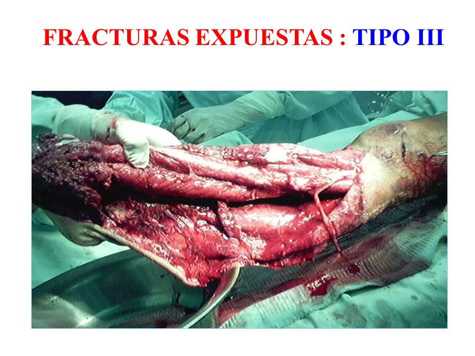 FRACTURAS EXPUESTAS : TIPO III