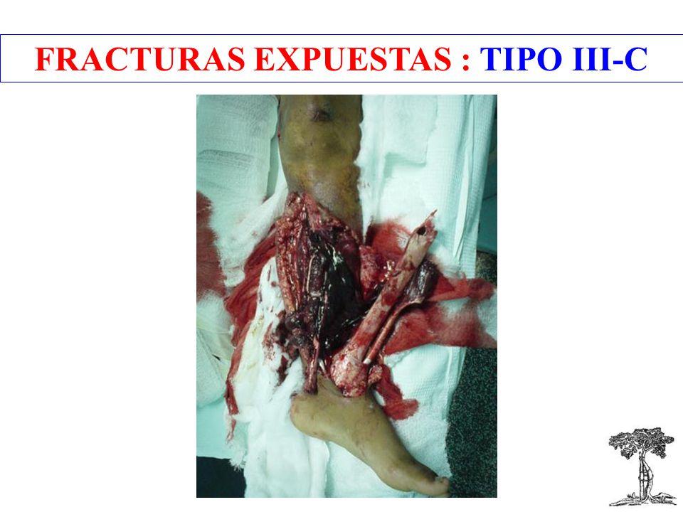 FRACTURAS EXPUESTAS : TIPO III-C