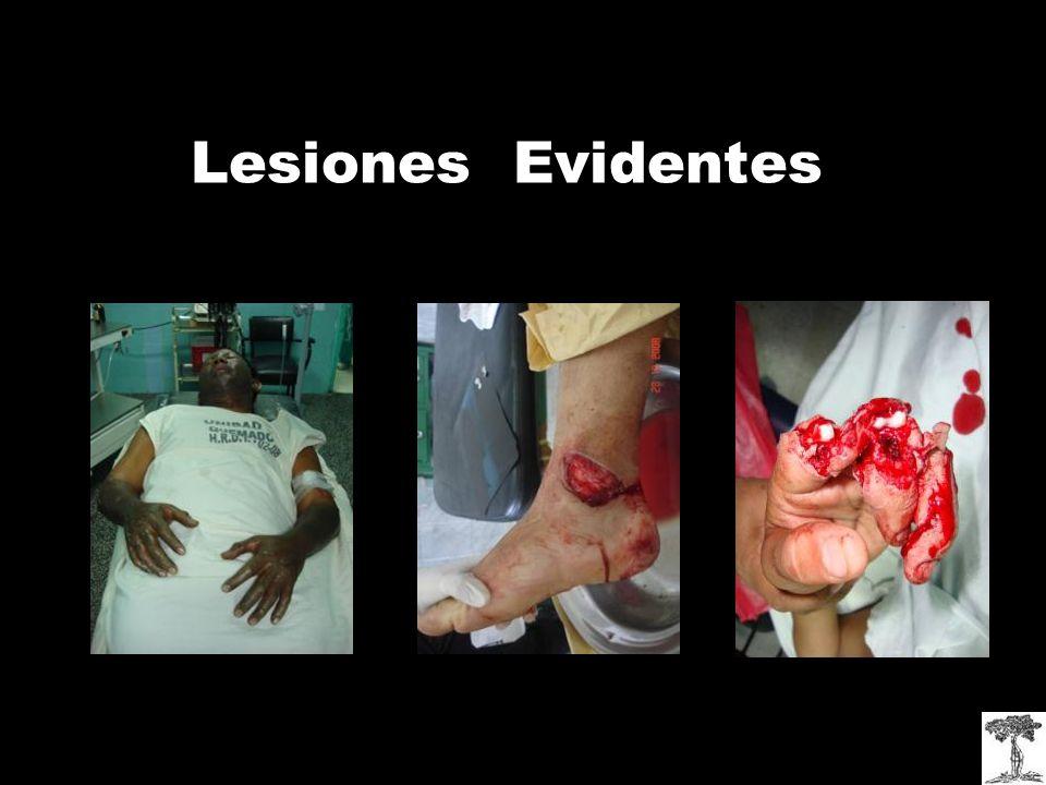 Lesiones Evidentes