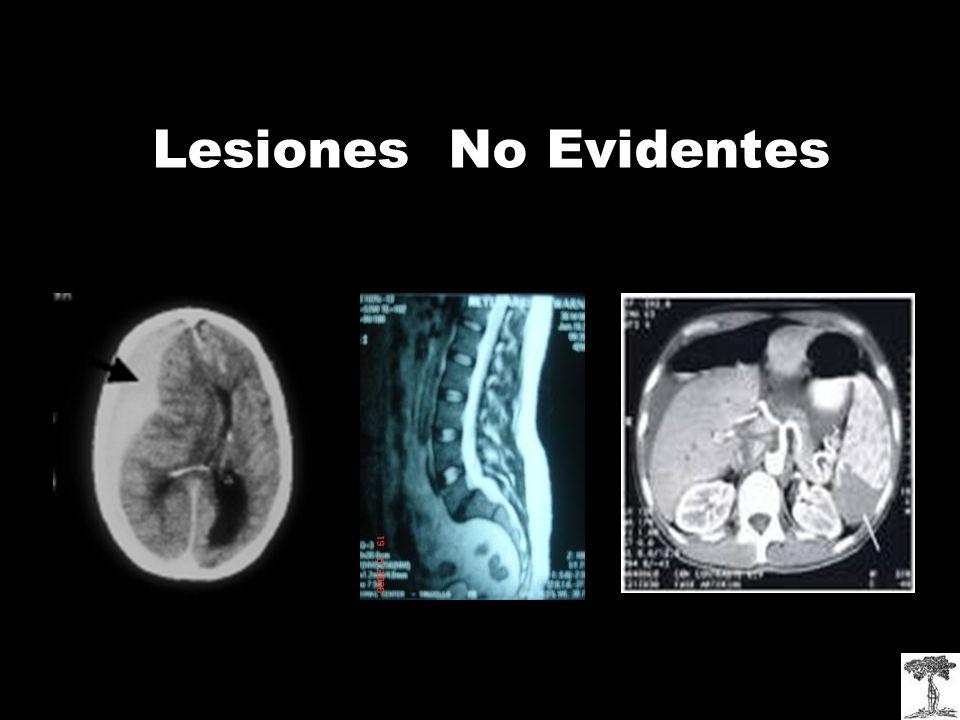 Lesiones No Evidentes