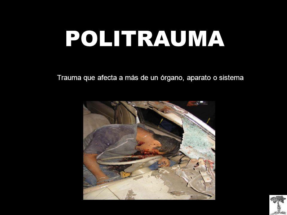 Trauma que afecta a más de un órgano, aparato o sistema