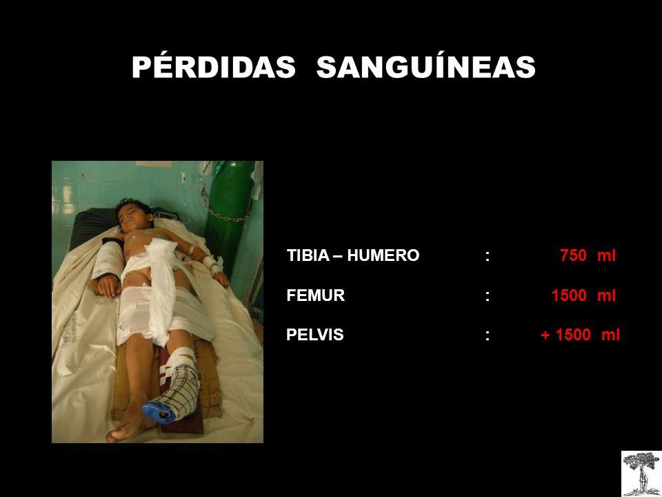 PÉRDIDAS SANGUÍNEAS TIBIA – HUMERO : 750 ml FEMUR : 1500 ml