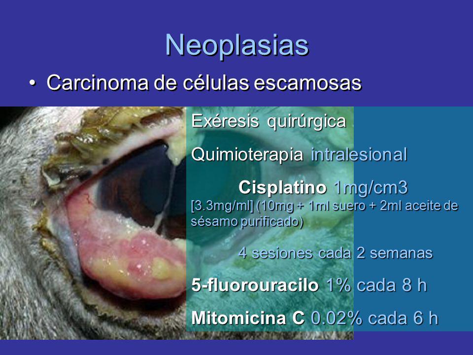 Neoplasias Carcinoma de células escamosas Exéresis quirúrgica