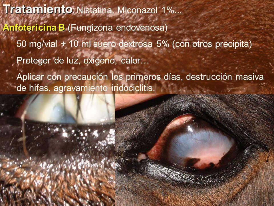 Tratamiento: Nistatina, Miconazol 1%...