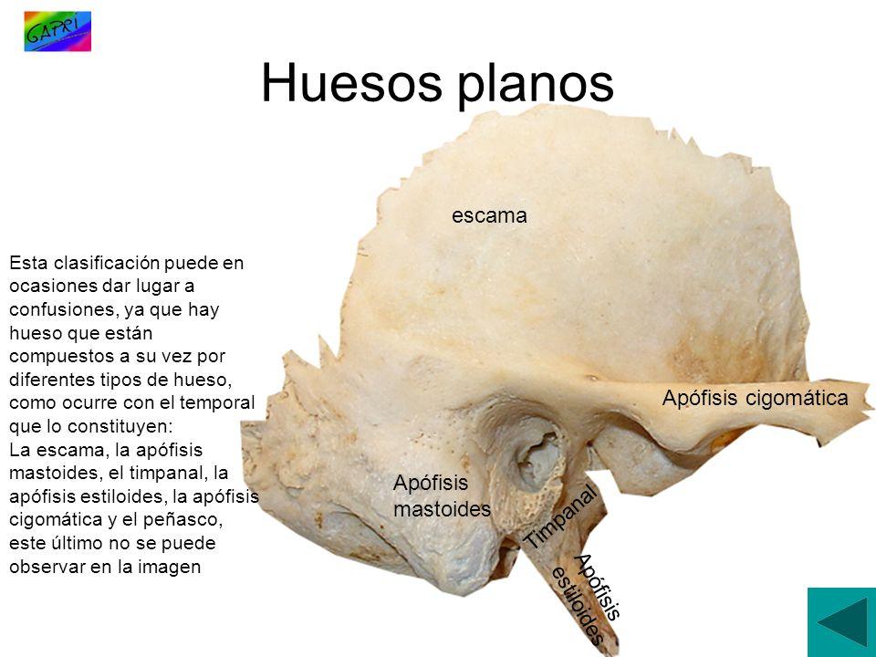 Huesos planos escama Apófisis cigomática Apófisis mastoides Timpanal