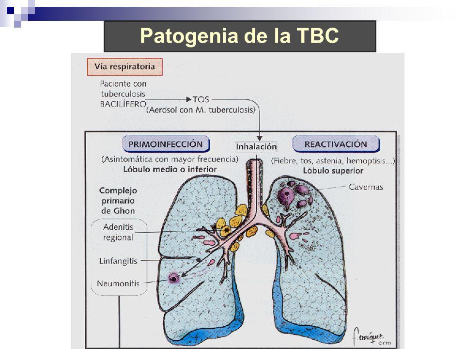 Patogenia de la TBC