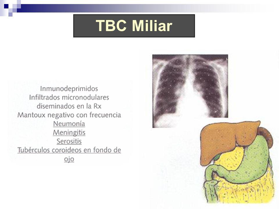 TBC MiliarProducida por diseminación hematógena en personas con alteración grave de la inmunidad.
