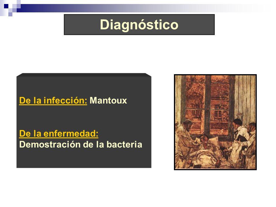 Diagnóstico De la infección: Mantoux