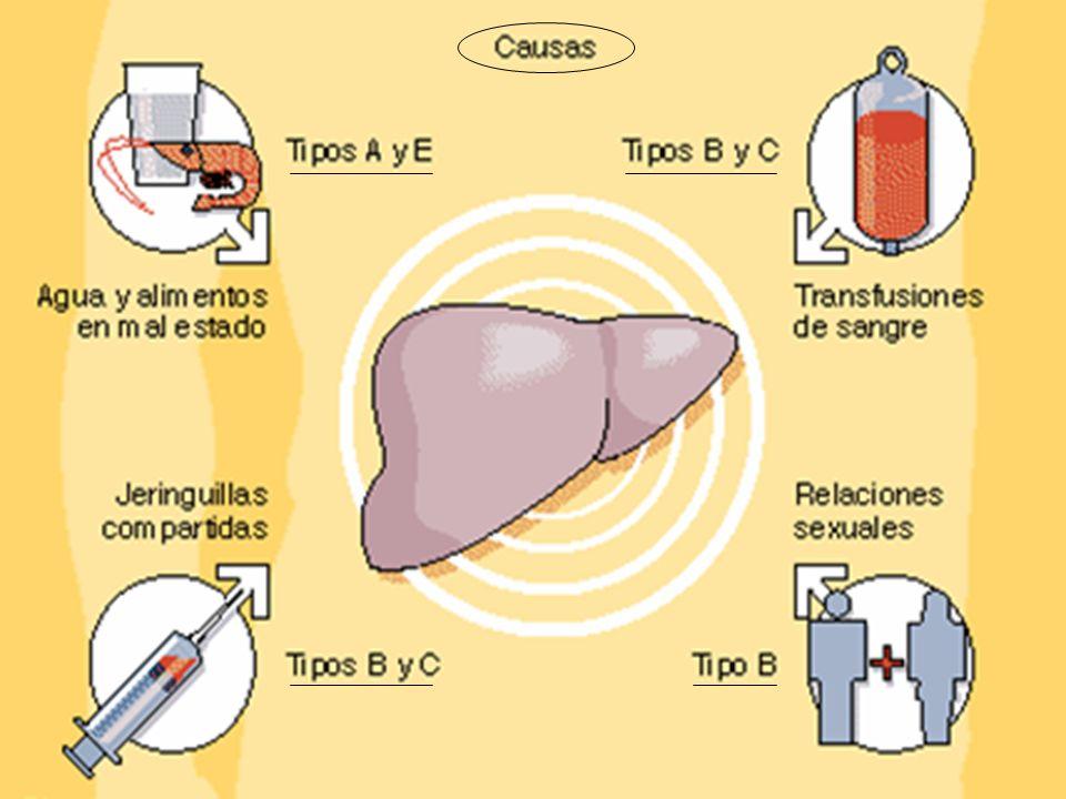El virus de la Hepatitis A se encuentra en grandes cantidades en las heces de las personas con enfermedad aguda, y se transmite por vía oral, favorecido por las malas condiciones higiénico-sanitarias