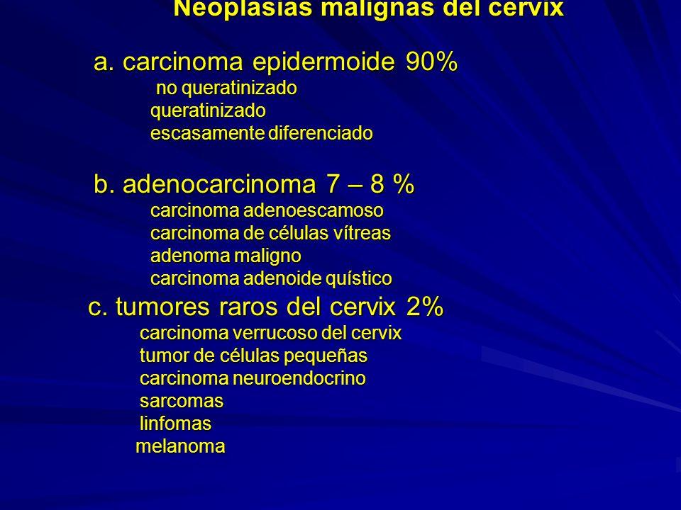 Neoplasias malignas del cervix a
