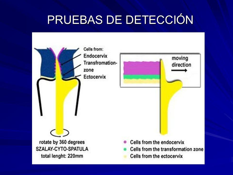 PRUEBAS DE DETECCIÓN