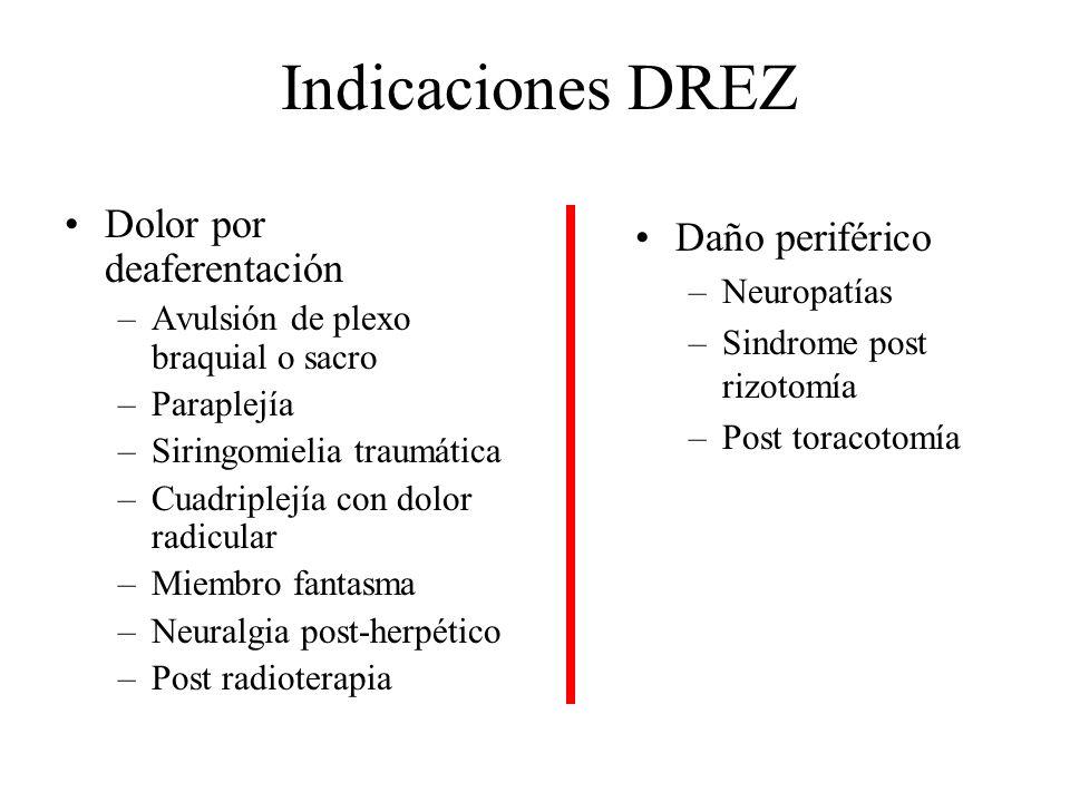 Indicaciones DREZ Dolor por deaferentación Daño periférico Neuropatías