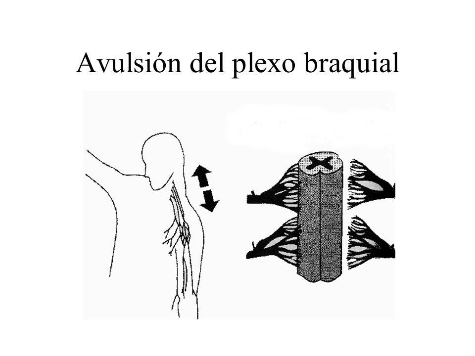 Avulsión del plexo braquial
