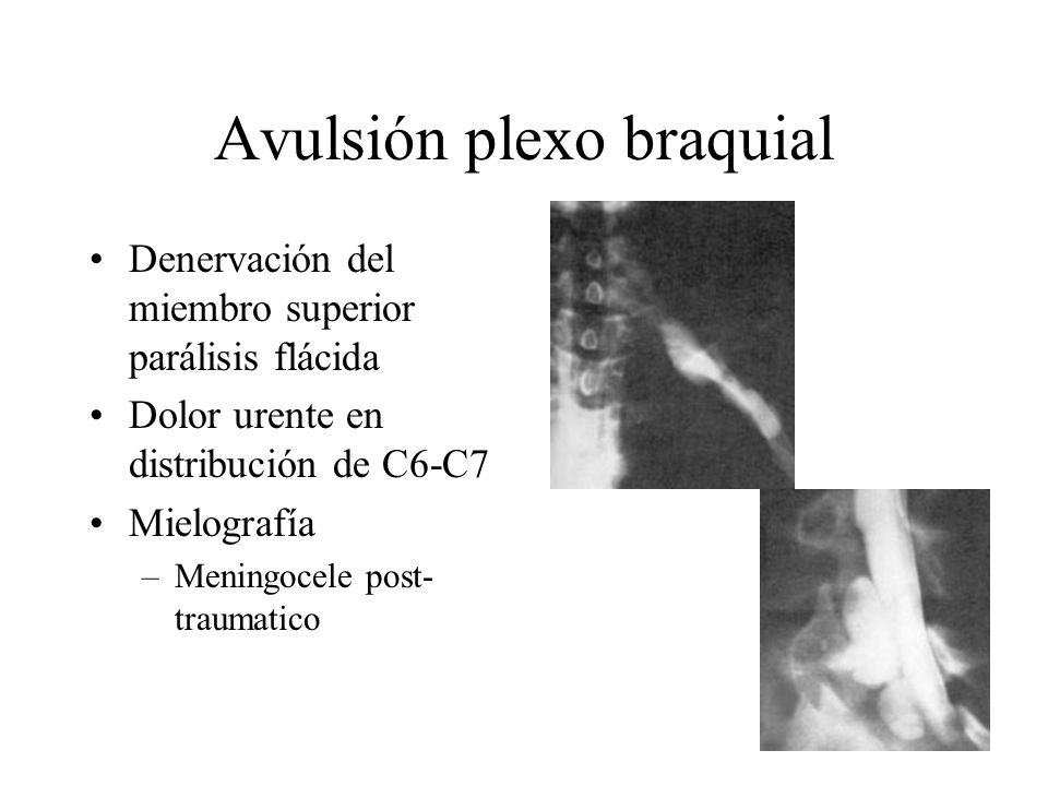 Avulsión plexo braquial