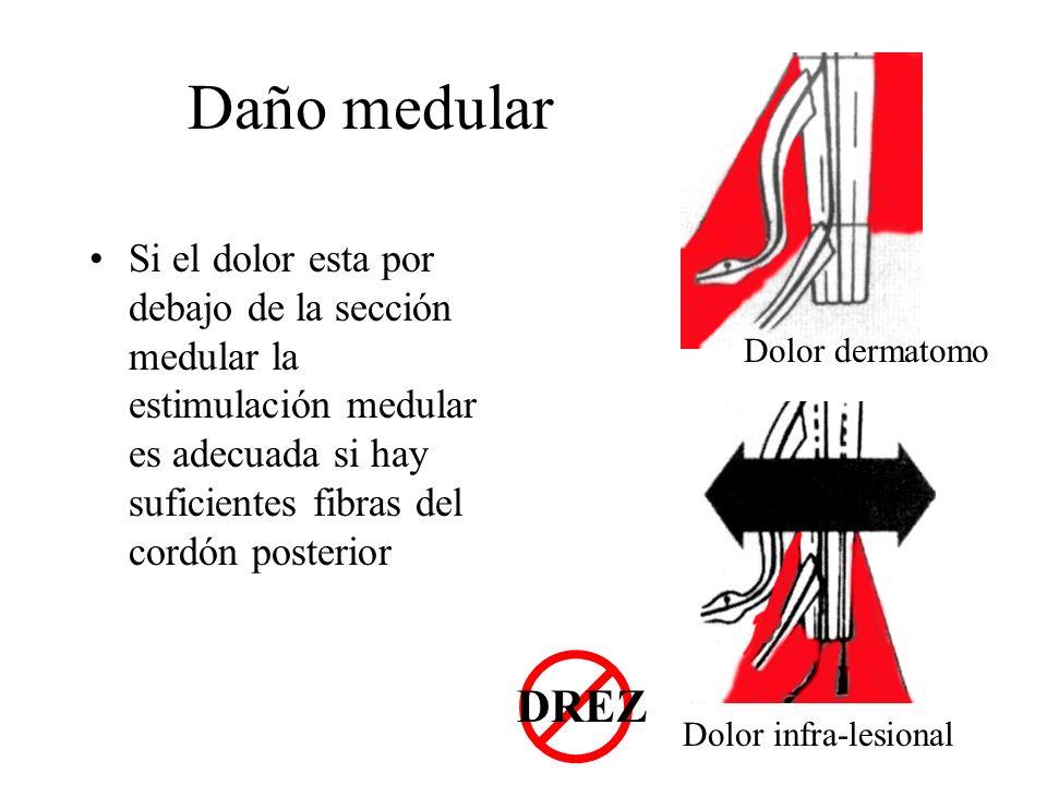 Daño medular Si el dolor esta por debajo de la sección medular la estimulación medular es adecuada si hay suficientes fibras del cordón posterior.