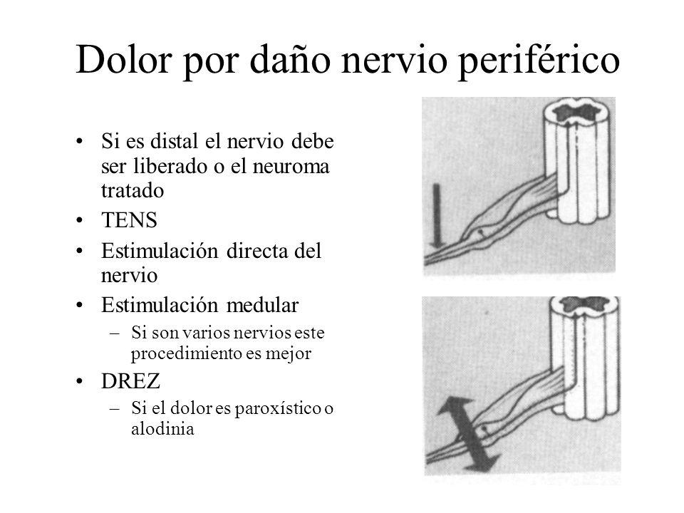 Dolor por daño nervio periférico
