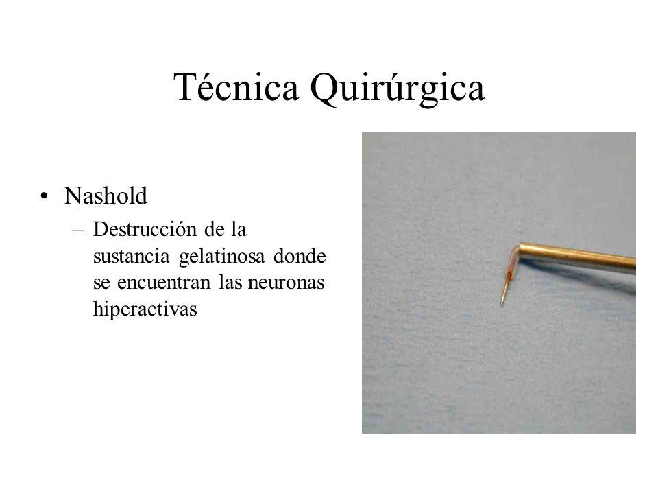 Técnica Quirúrgica Nashold