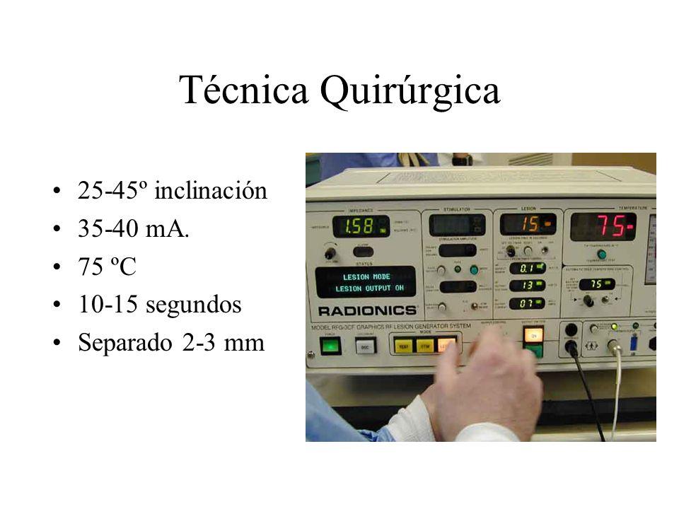 Técnica Quirúrgica 25-45º inclinación 35-40 mA. 75 ºC 10-15 segundos