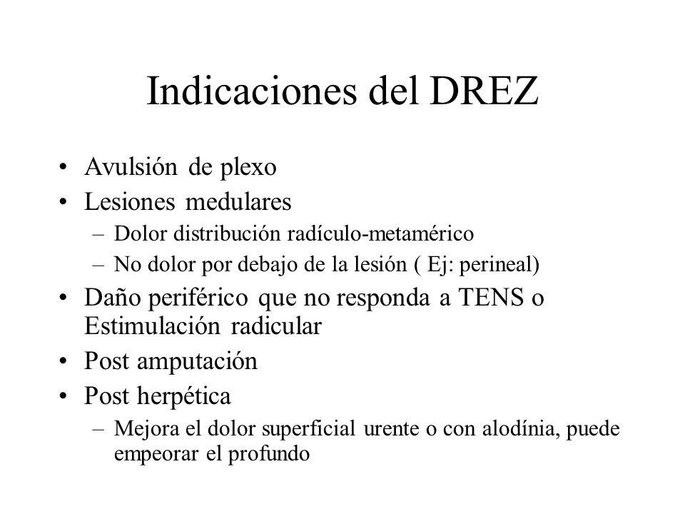 Indicaciones del DREZ Avulsión de plexo Lesiones medulares