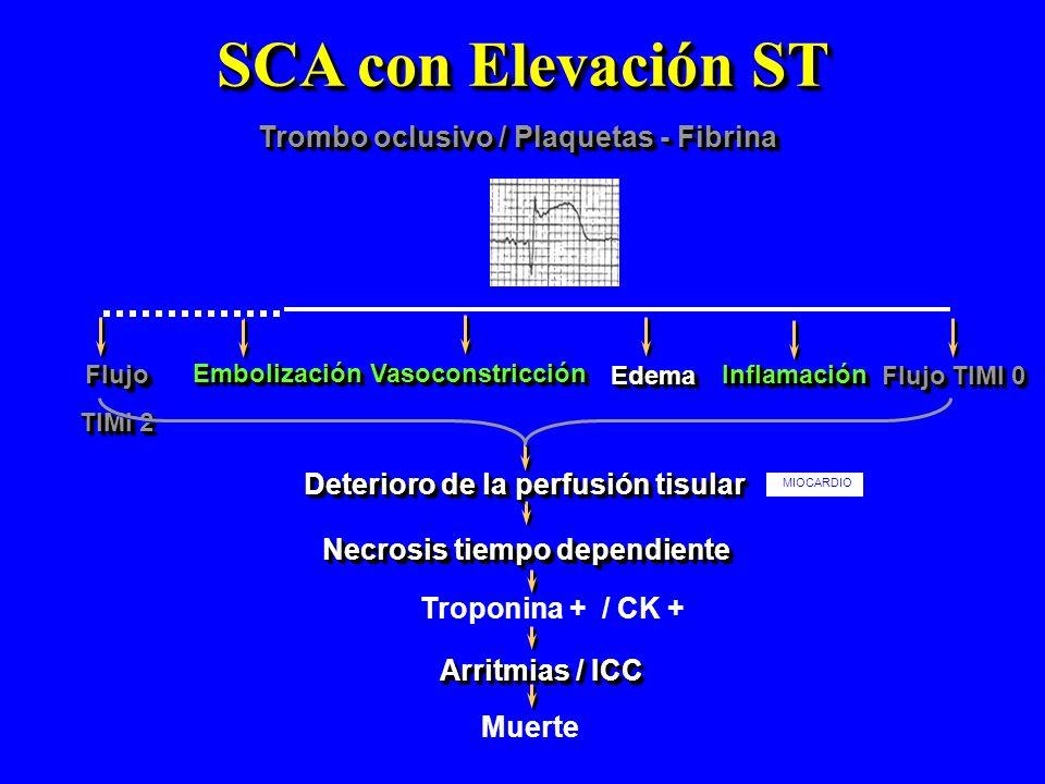 SCA con Elevación ST Trombo oclusivo / Plaquetas - Fibrina