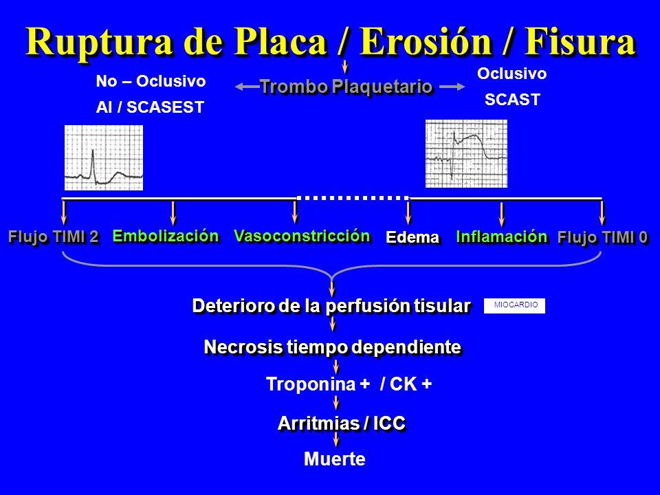 Ruptura de Placa / Erosión / Fisura