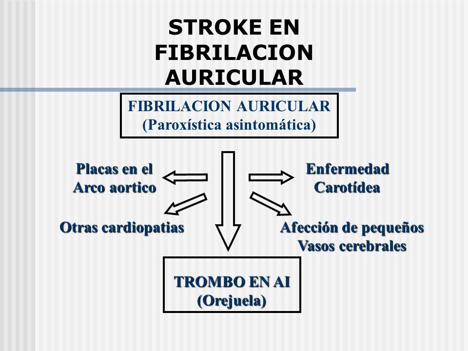 STROKE EN FIBRILACION AURICULAR