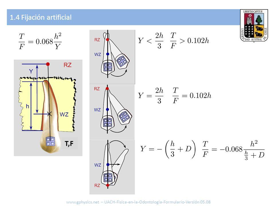 1.4 Fijación artificial T,F