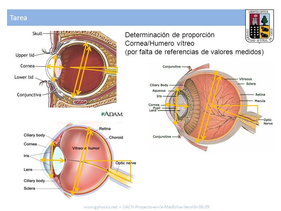 Tarea Determinación de proporción Cornea/Humero vítreo