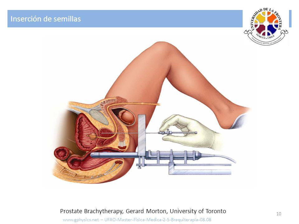 Inserción de semillas Prostate Brachytherapy, Gerard Morton, University of Toronto.