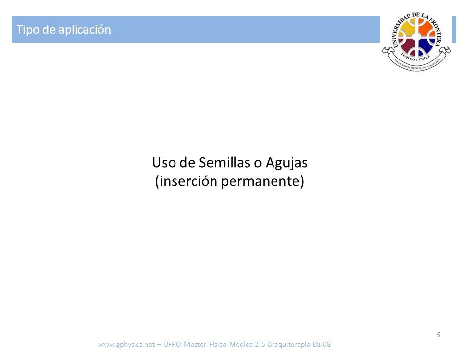 Uso de Semillas o Agujas (inserción permanente)