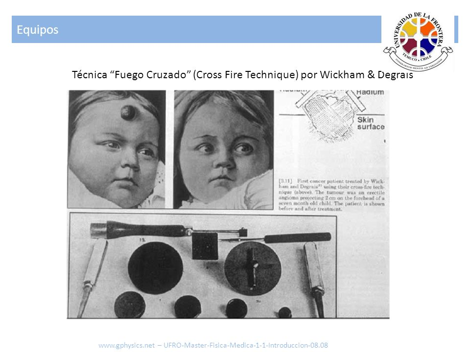 Equipos Técnica Fuego Cruzado (Cross Fire Technique) por Wickham & Degrais.