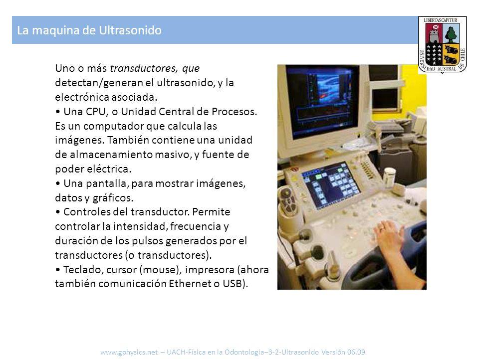 La maquina de Ultrasonido